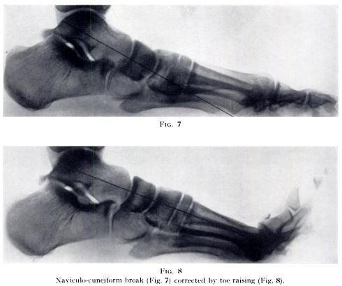 Jacks original x-rays showing the Toe Raising test