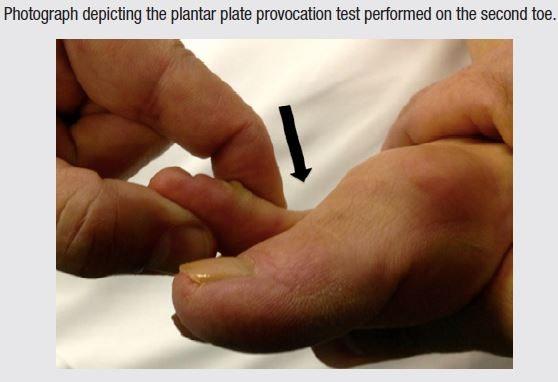 Plantar Plate Provocation Test